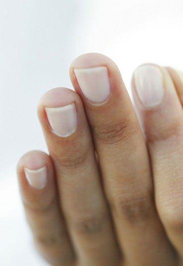 Was hilft gegen einen eingerissenen Nagel? - Beauty-Pannen: Was schnell hilft - Das Beauty-Problem: Nicht schön und manchmal auch schmerzhaft: Ein eingerissener Nagel. Das hilft dagegen: Inzwischen gibt es spezielle Repair-Lacke, die kleine Schäden am Nagel reparieren...