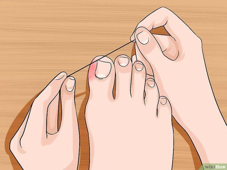 Lindern Sie die Schmerzen eingewachsener Zehennägel – Gesundheit