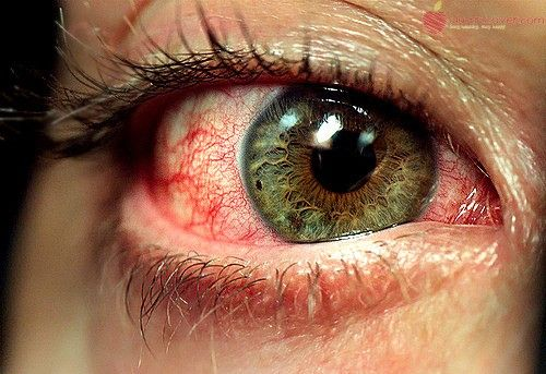 Itching eyes are actually a symptom of an underlying cause. Though itching in the eyes does not cause any threat to eyesight, it can be a source of irritat