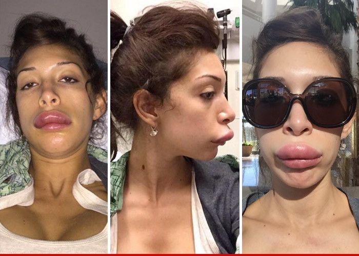 Huh?    http://www.tmz.com/2015/01/06/farrah-abraham-lips-injections-bad-plastic-surgery/