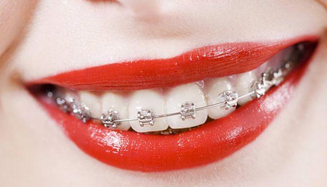 Istnieje wiele rodzajów aparatów ortodontycznych, zarówno stałych, jak i ruchomych. Ortodonta Bytom najlepiej dobierze aparat do naszej wady. Te poważniejsze wymagają aparatu stałego. Jednak nie martwmy się! stały aparat może wyglądać naprawdę ładnie. http://blueklinik.pl/pl/ortodoncja/oferta/aparaty/