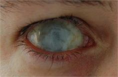 Zombie Eye Contacts | Below: Dead eye Scleral lenses (ideal for zombies, blind people and ...