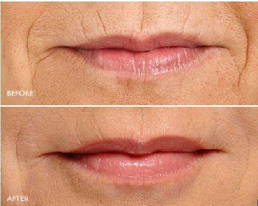 Lijnen rond de lippen hoeft niet meer. Pak de rimpels rond de lippen aan met de nieuwe SNIF (Sharp Needle Intradermal Fat Grafting) techniek! Deze ingreep vindt plaats met lokale verdoving of gelijk met een andere ingreep aan het gezicht. De hersteltijd bij SNIF is kort, meestal 2 tot 4 dagen, en het risico op complicaties is minimaal. Het resultaat van SNIF is langduriger dan dat van veel andere fillers. Kijk op: http://www.wellnesskliniek.com/nl/huid-injecties voor meer informatie.