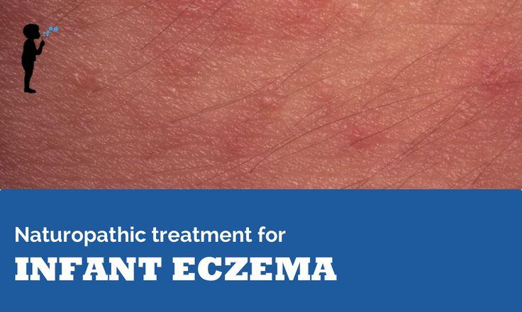 infant eczema naturopathic