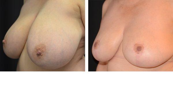 Rintojen pienennysleikkaus auttaa, jos liian suuret rinnat aiheuttavat hartia- ja selkävaivoja tai ulkonäköongelmia.   http://www.cityklinikka.fi/palvelut/rintojen-pienennysleikkaus/