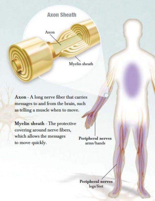 Chronic inflammatory demyelinating polyneuropathy (CIDP) «