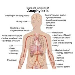Anaphylaxis training at Bostock Health care. Use of Epipen/anapen. Anaphylaxis/Epipen/Anapen Training for First Aiders. This training is aimed at schools, surgeries and places where members of staff may encounter casualties who have allergic reactions.  What is anaphylaxis? Who gets anaphylaxis? What triggers anaphylaxis? What happens within the body during anaphylactic shock? Signs and symptoms of anaphylaxis First aid management - including auto injector guidance for schools