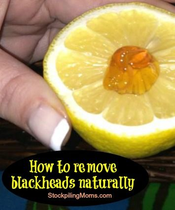 How to remove blackheads naturally with lemon and honey - but sometimes I wonder if lemon on sensitive, auburn-haired girly skin is a good idea...?