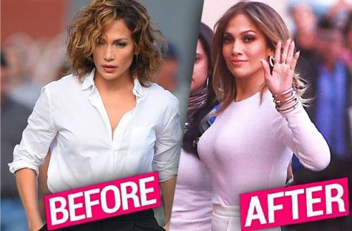 Jennifer Lopez's Plastic Surgery EXPOSED — Top Doc Weighs... #JenniferLopez: Jennifer Lopez's Plastic Surgery EXPOSED — Top… #JenniferLopez