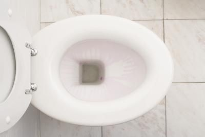 Worth a try anyway - How to Get Brown Rings & Stains Out of a Toilet Bowl.   Additional tips: Add 1 cup of white vinegar to the toilet bowl each week and allow it to sit overnight to remove stains and freshen the toilet bowl.  Substitute lemon juice to remove limescale and mineral deposit stains inside the toilet.