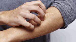 Démangeaison sur le bras