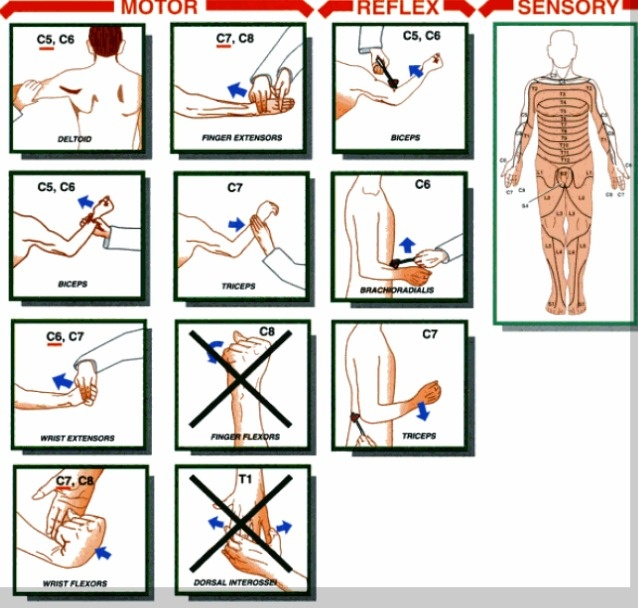 spinal cord injuries in adapted physical Explore maria dallas's board intervention ideas for patients with spinal cord  spinal rehab offers chiropractic, physical  spinal cord injuries .