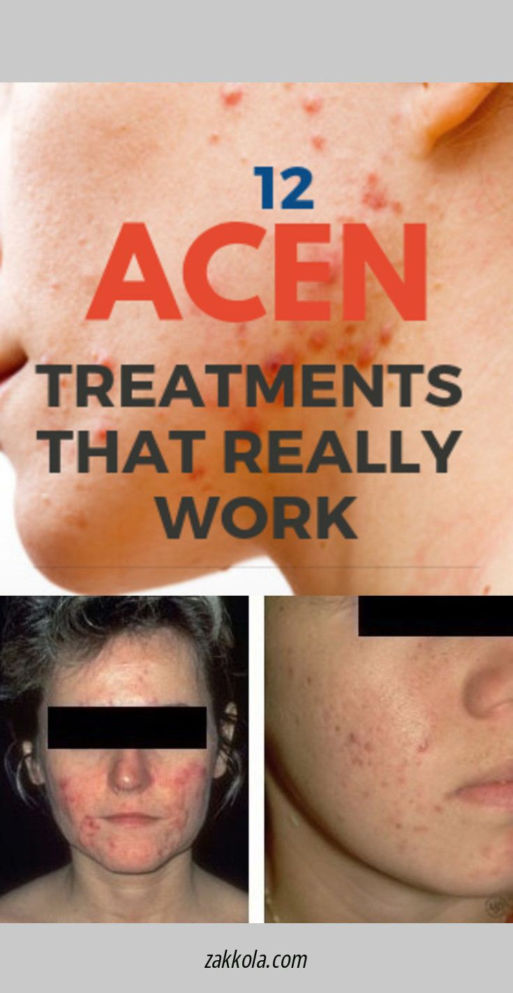 acne-adult-forum-mahima-chaudhary-nude