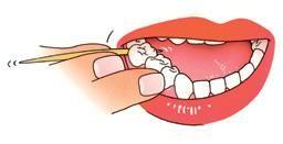 de perfecte tandenstoker is van hout en heeft een driehoekige vorm, de tandstoker moet tussen alle tanden en kiezen doorkomen met de platte kant richting het tandvlees