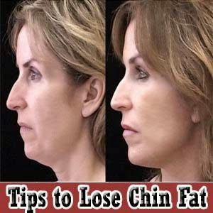 Loosing a double chin caused by chin fat, is not always the easiest thing to do. This chin fat is caused by being overweight, aging and often simply genetics. I