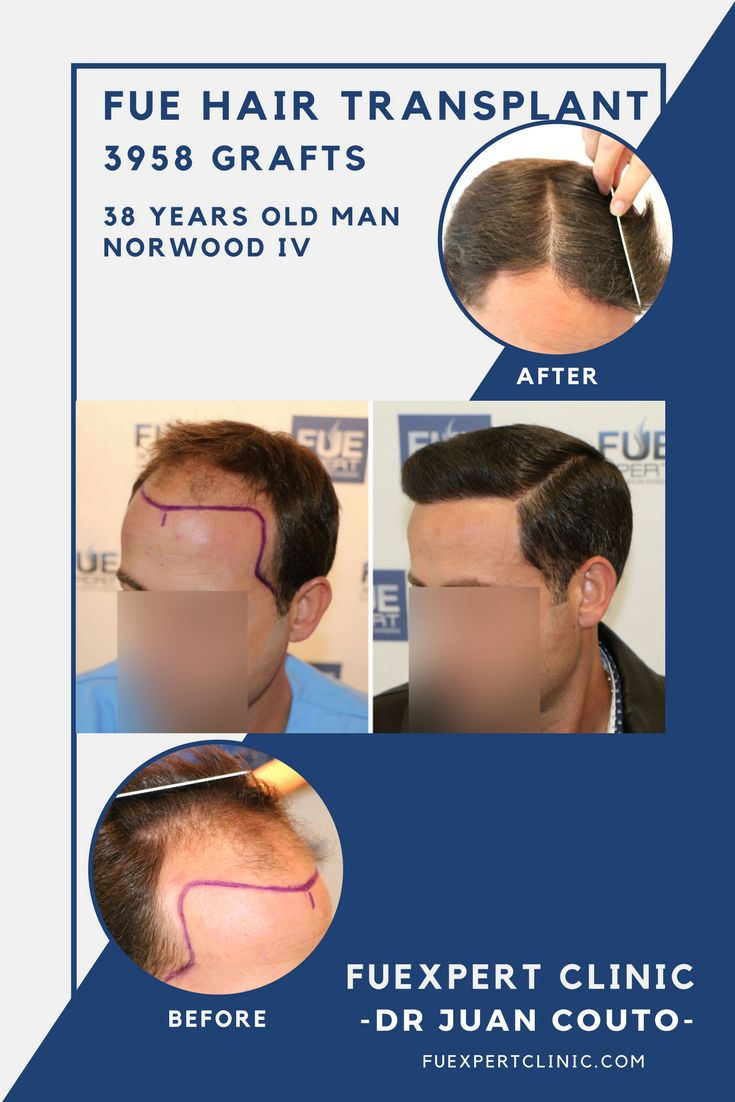 Before After 3958 Grafts - FUE Hair Transplant at FUExpert Clinic by Dr  Juan Couto -