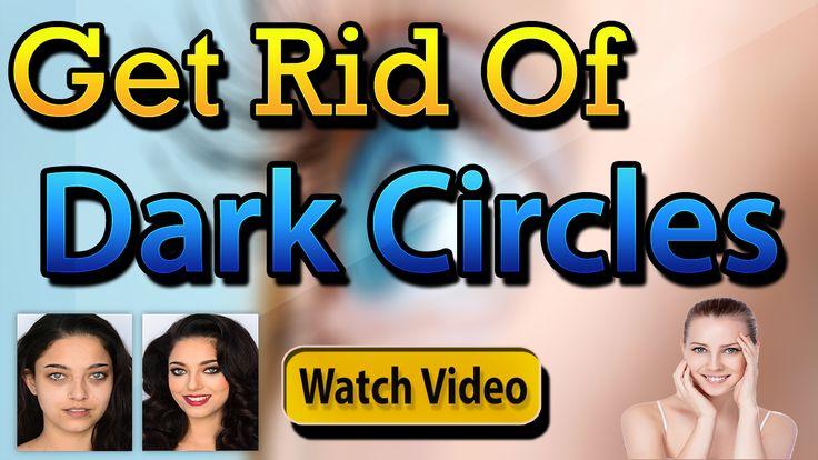 how to get rid of hereditary dark circles naturally