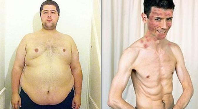 Sering Konsumsi Barang Ini, Berat Badan Pria Obesitas Ini Turun Sampai 113 kg dalam Sekejap