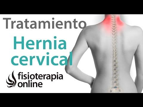 21 best images about cuidados hernia discal on pinterest for Ejercicios en piscina para hernia discal l5 s1