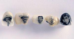偉人の顔なんかも : アメリカで流行中の「歯タトゥー」が意外とかわいい♥ - NAVER まとめ