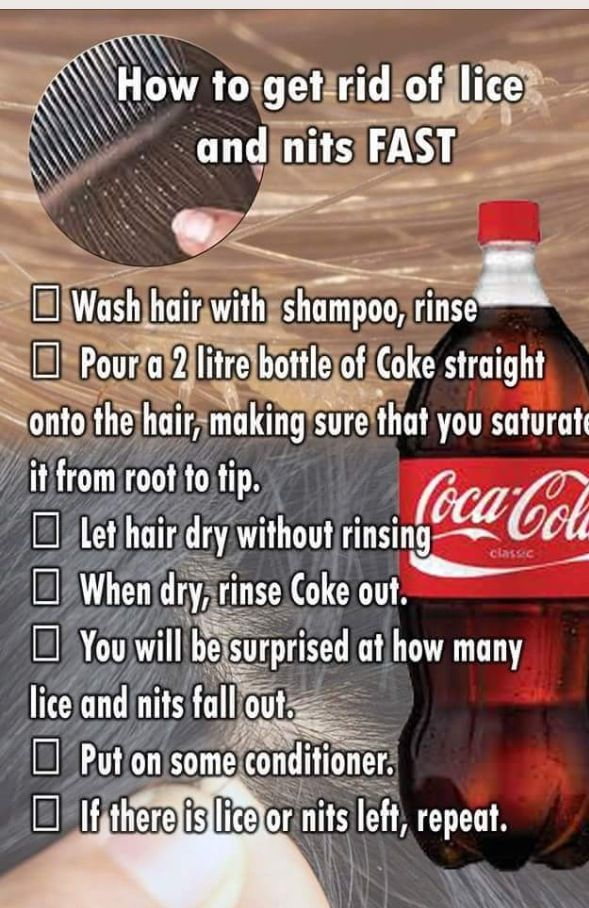 Crazy Coca Cola Lice Treatment Good To Know Pinterest