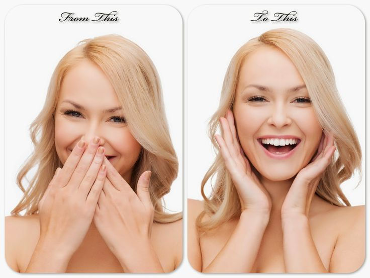 In this day and age no one should hide their teeth when they smile. Dental Info, Brampton Dentists, Dentistry Information, Makeovers,