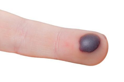 Among the various skin problems, occurrence of blood blisters is one of them. This usually happens as a result of the damage caused to the blood vessels below the surface of the skin. It is red in colour and is more like a bump that is filled with liquid and is really painful especially when [...]
