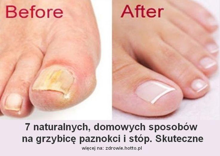 Jak naturalnie leczyć zakażenie grzybicze paznokci. Infekcje grzybicze (grzybica) paznokci i stóp dotykają bardzo wiele osób. Zmiany w obrębie paznokci