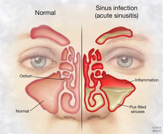 Dentaltown - Sinus infection causing tooth pain?. Maxillary sinus disease of odontogenic origin. http://www.ncbi.nlm.nih.gov/pubmed/15064067. Odontogenic sinusitis is a well-recognized condition and accounts for approximately 10% to 12% of cases of maxillary sinusitis. An odontogenic source should be considered in patients with symptoms of maxillary sinusitis