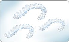 Invisalign treatment consists of a series of clear aligners that you change about every two weeks. Each aligner is individually manufactured with exact calculations to gradually shift your teeth into place and produce the perfect smile