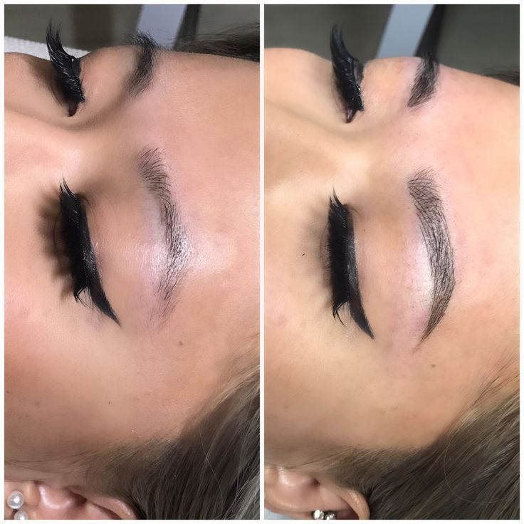 Microbladed (Again)