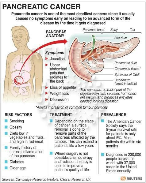 51 best Pancreatic cancer images on Pinterest | Cancer ...