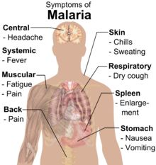 Symptoms of malaria include fever, shivering, arthralgia (joint pain), vomiting, anemia (caused by hemolysis), jaundice, hemoglobinuria, retinal damage,[14] and convulsions. The classic symptom of malaria is cyclical occurrence of sudden coldness followed by rigor and then fever and sweating lasting four to six hours, occurring every two days in P. vivax and P. ovale infections, and every three days for P. malariae.