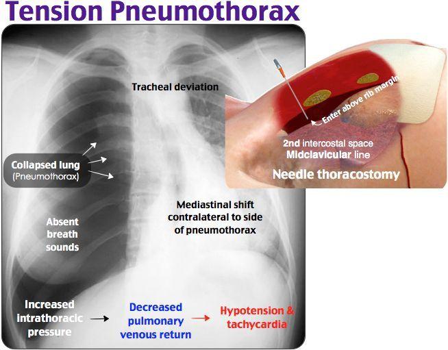 tension pneumothorax needle decompression - 654×511