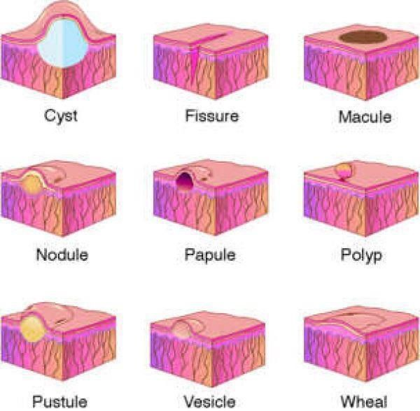 Differentiating: cyst, fissure, macule, nodule, papule, polyp, pustule, vesicle & wheal