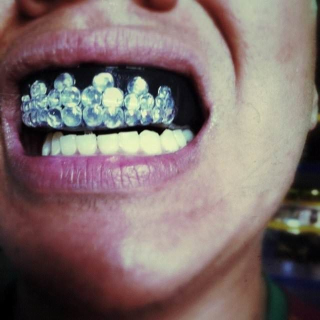 1000 Images About Gold Teeth On Pinterest: 1000+ Images About Glitz Grillz On Pinterest