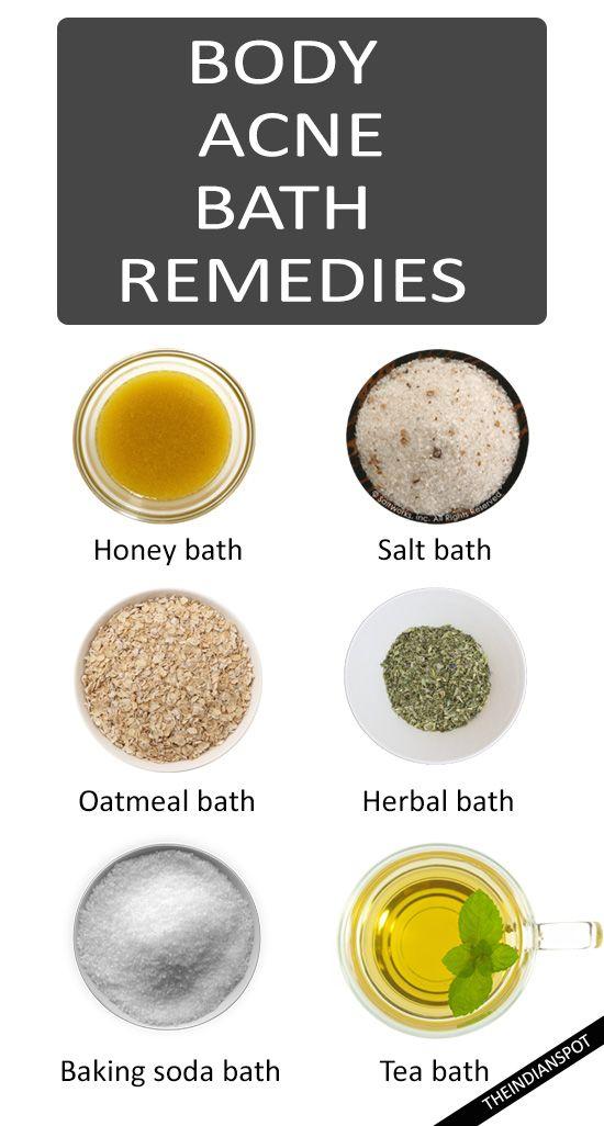 BODY ACNE REMEDIES WITH BATH RECIPES