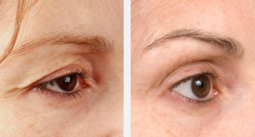 If you have droopy eyes, Thermage is the only procedure that helps smooth and tighten skin and decrease wrinkles and hooding in the eye area without surgery or injections. Call Carolina Laser & Cosmetic Center today for a consultation! 336-659-2663