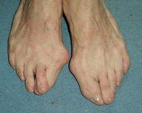 Aparitia monturilor este generata in principal de constructia piciorului, care poate favoriza aparitia lor - raporturi neobisnuite de marime intre oase ; de mobilitatea crescuta (conditionata hormonal) a ligamentelor antepiciorului, in cazul...