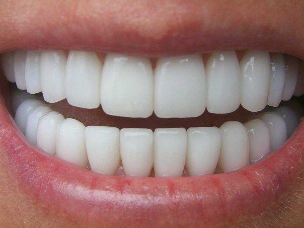 Πρώτο βήμα: κόβετε ένα κομμάτι φύλλου αλόης και το τρίβετε στα δόντια σας ώστε να αφαιρεθεί από το περίβλημα της.. (η μισό κουταλάκι του γλυκού).Αμέσως μετά, κρατώντας την αλόη στο στόμα σας, βουρτσίζετε τα δόντια σας κανονικά με την οδοντόκρεμα σας. Ακολουθήστε την ενδεδειγμένη διαδικασία που ακολουθείτε ως συνήθως για το πλύσιμο των δοντιών σας. …