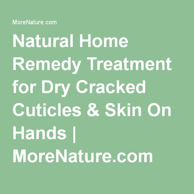 Natural Home Remedy Treatment for Dry Cracked Cuticles & Skin On Hands | MoreNature.com