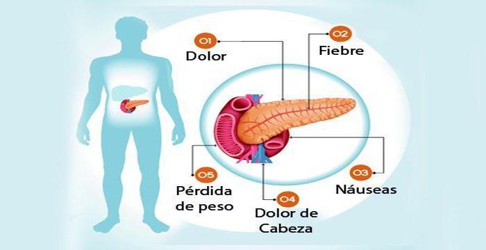 Consejos De Nutrición Cuando Tienes Trastornos Del Páncreas