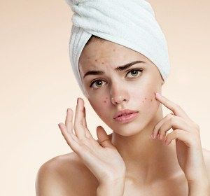 Teenage Skin problems & Home Remedies