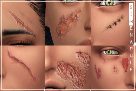 6 F/M scars by Ronja at Simenapule via Sims 4 Updates