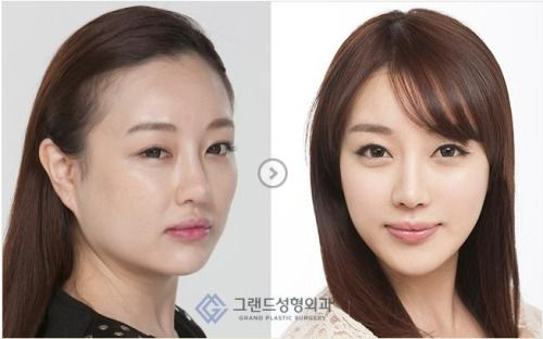 [Grand Plastic Surgery] Hairline Transplantation & Square Jaw Reduction Before After