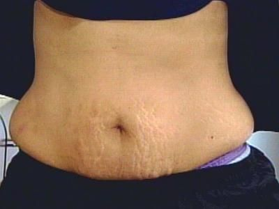 There's an easy way to get rid of it all using home remedies in the ebook I found from http://www.eraseyourstretchmarks.com/. The methods can be done by yourself without technology, medical breakthroughs, even laser-type surgery.