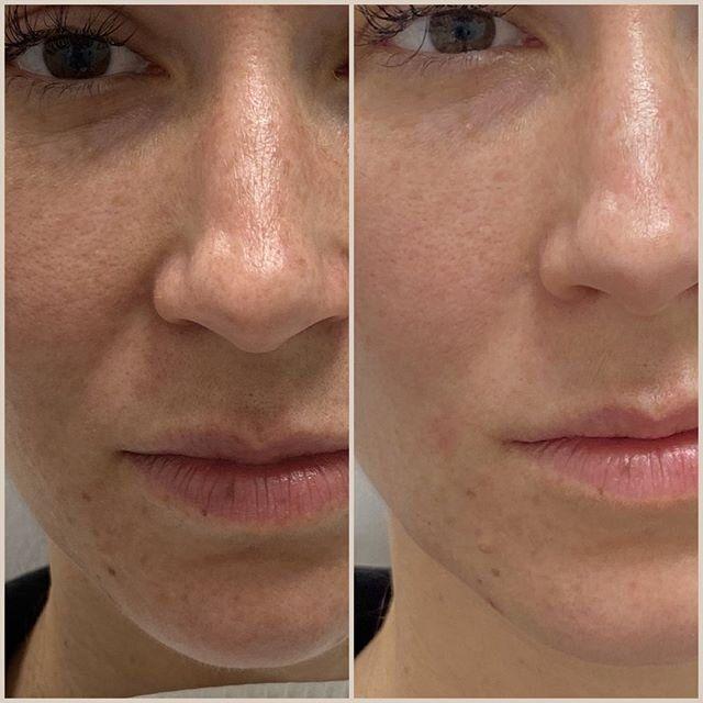 Medical Grade Skin Care Mint Needle In 2020 Skin Care Skin Skin Care Routine