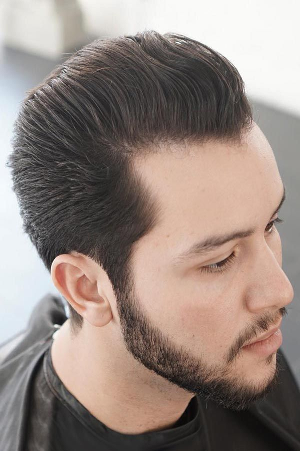 Receding Hairline Treatment Guidelines Prevent Resolve And Improve