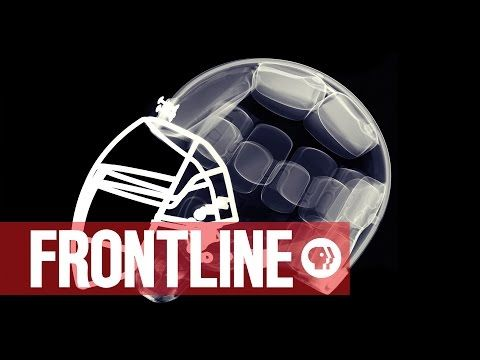 "Iron Mike Webster: Patient Zero in the NFL's ""League of Denial"" (Part 1 of 9) 