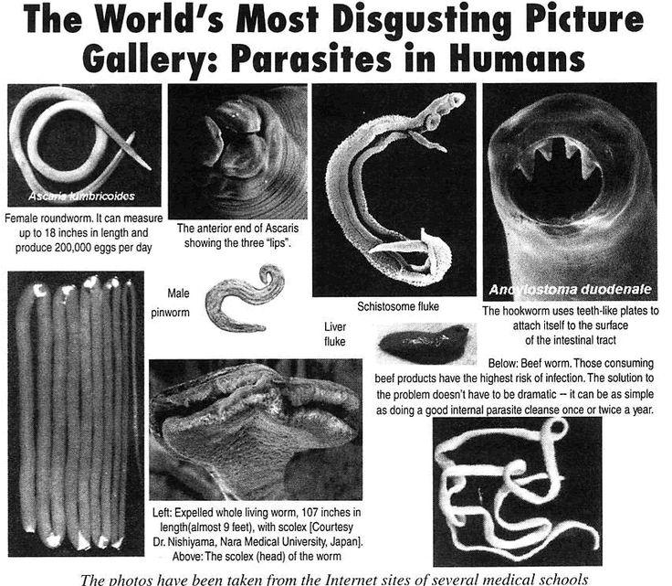 117 best Your Gut Health & Digestion images on Pinterest ...